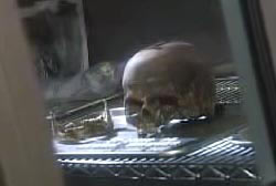 The skull of Linda Sherman on a table in a lab